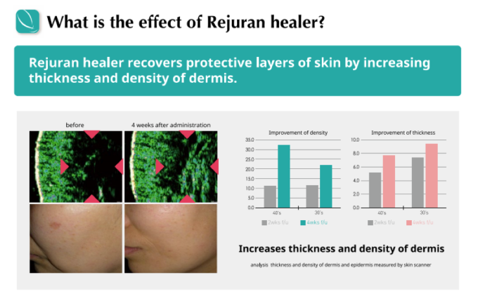 rejuran healer for acne scars