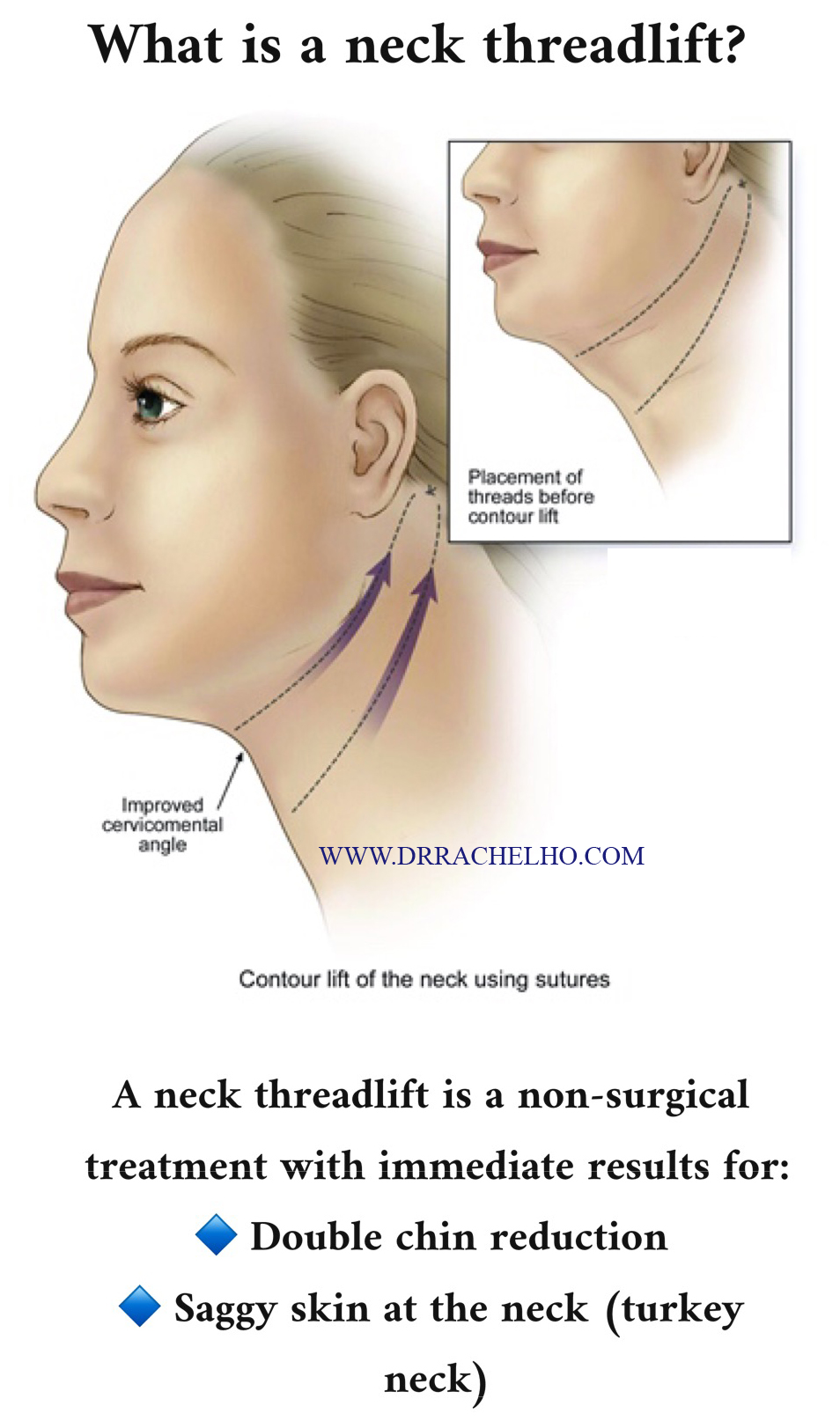 Dr Rachel Ho | Double Chins: Double Trouble Gone Forever