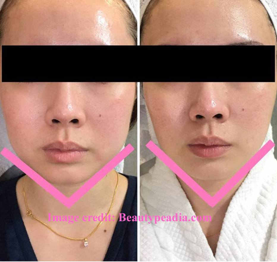 Dr Rachel Ho | A Guide to a Slimmer V Face: Jaw Reduction
