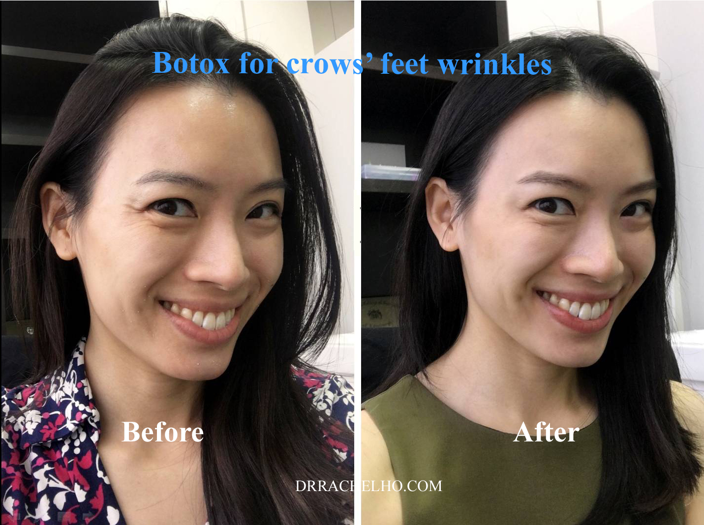 crows feet botox before after dr rachel ho