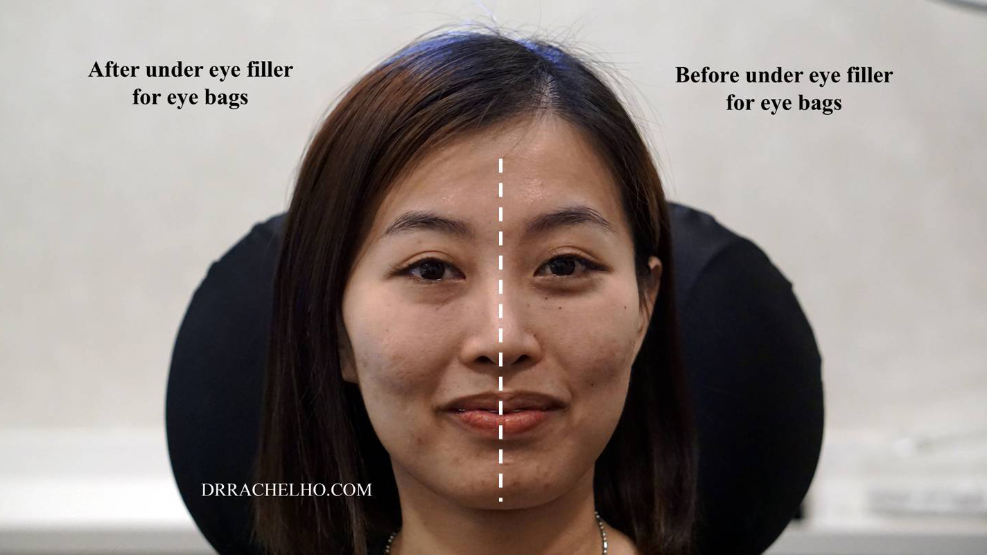 Dr Rachel Ho | How to Get Rid of Eye Bags Without Surgery