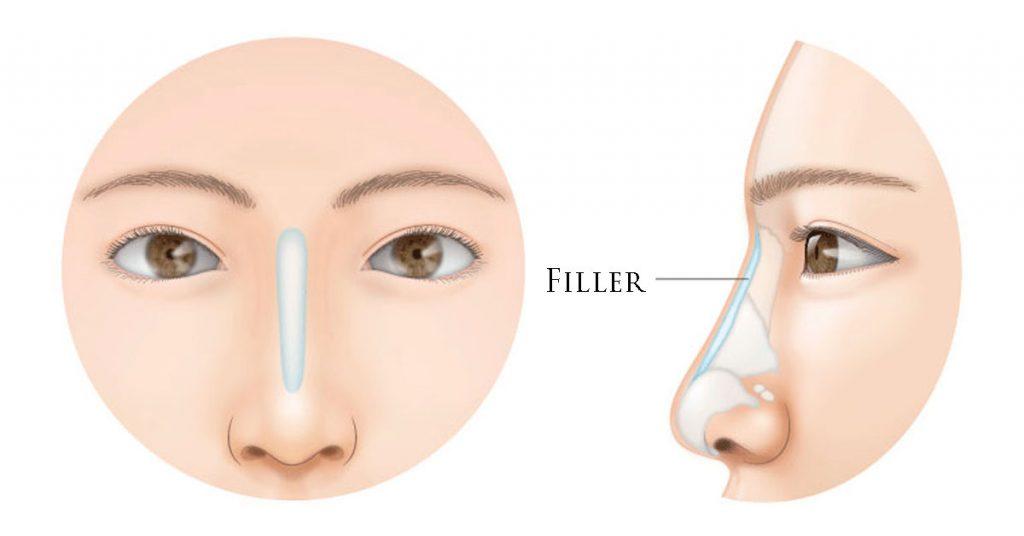 اصلاح عدم تقارن بینی با پرکننده بینی