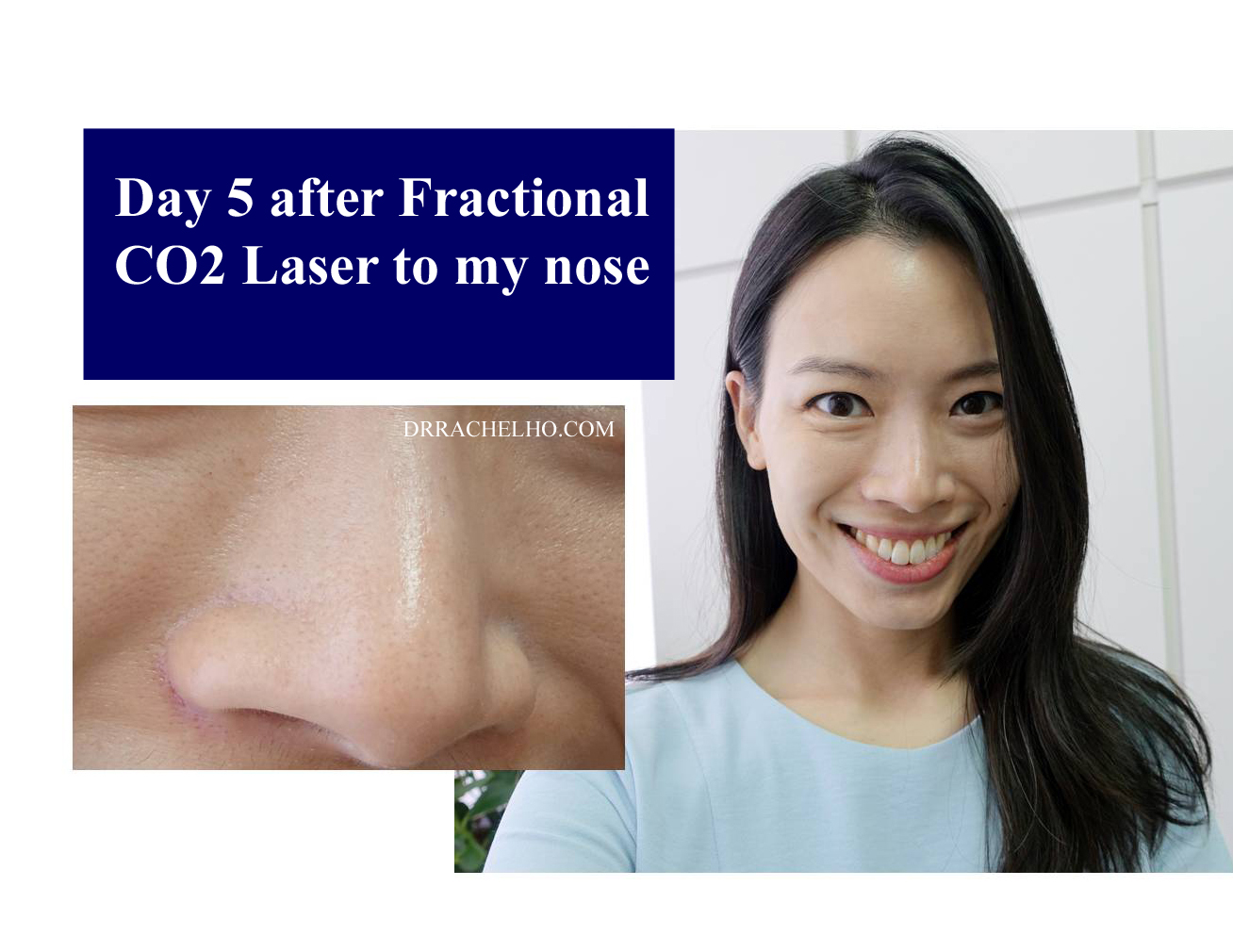 Dr Rachel Ho How To Get Rid Of Large Pores Myths And Truths
