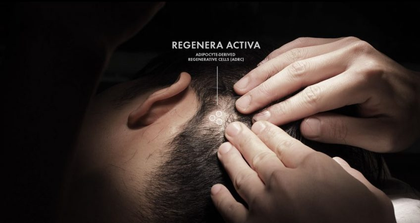 regenera activa micrograft stem cells from scalp
