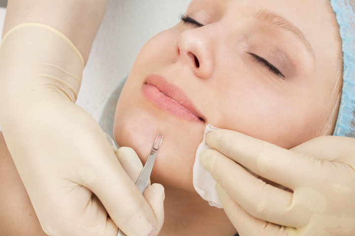 extraction of pimples by beautician