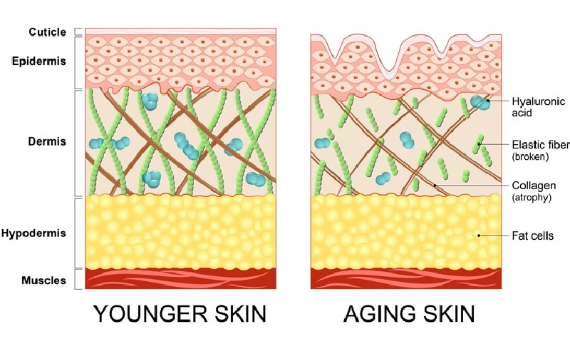 hyaluronic acid in the skin is lost with aging