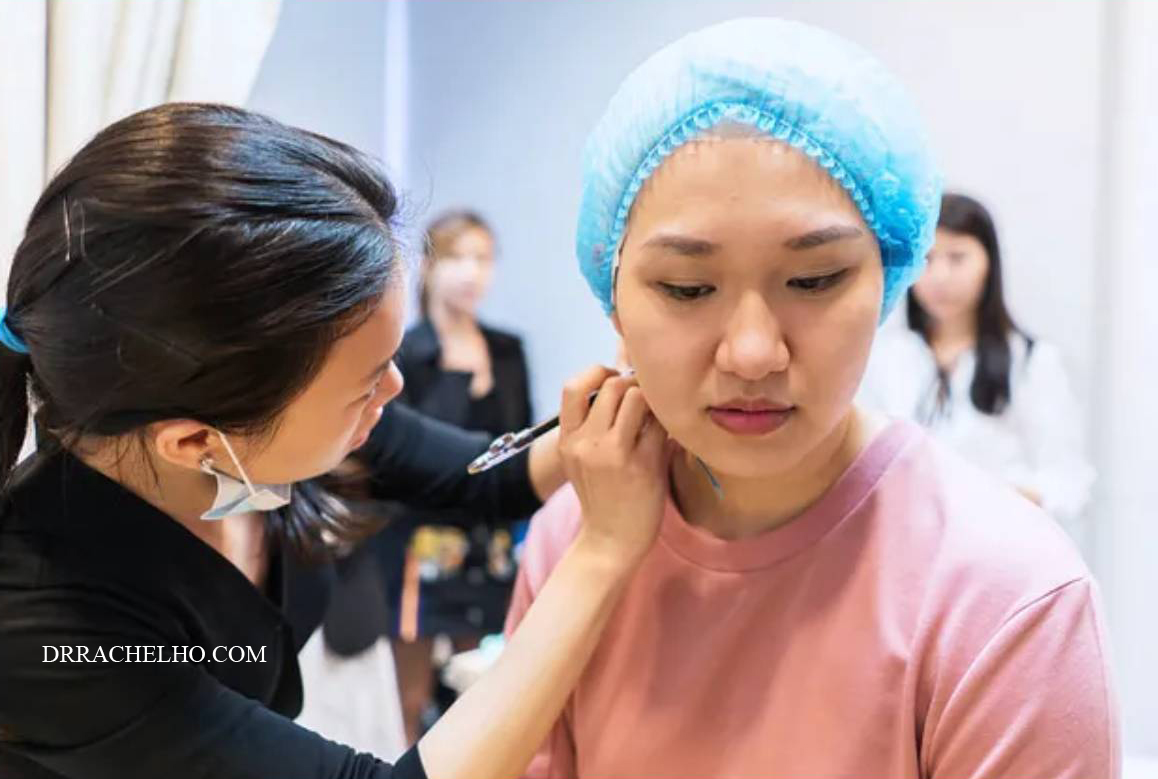 dr rachel ho neck threadlift