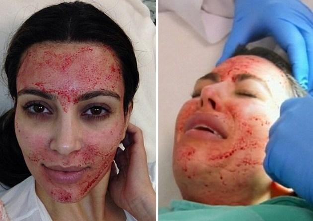 kim kardashian vampire facial PRP