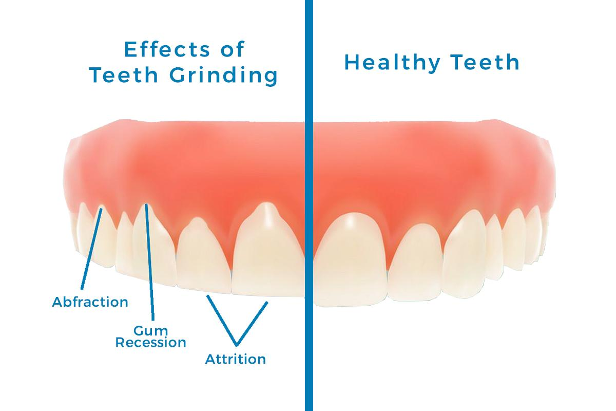 effects of bruxism on dentition