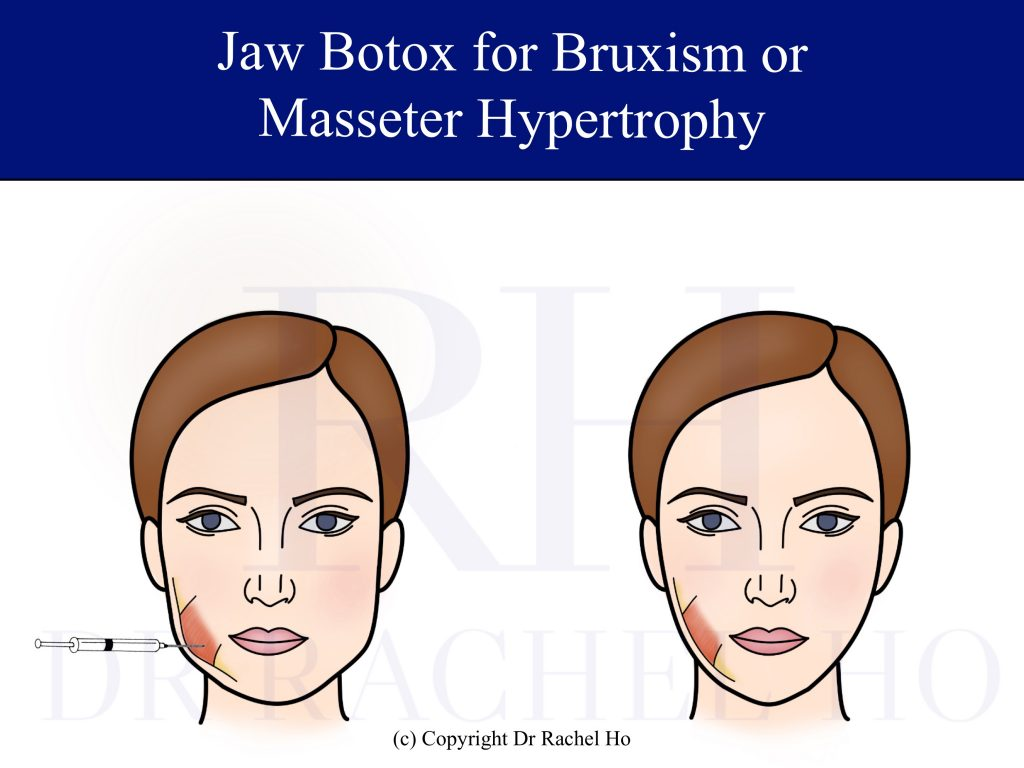 jaw botox for bruxism or masseter hypertrophy
